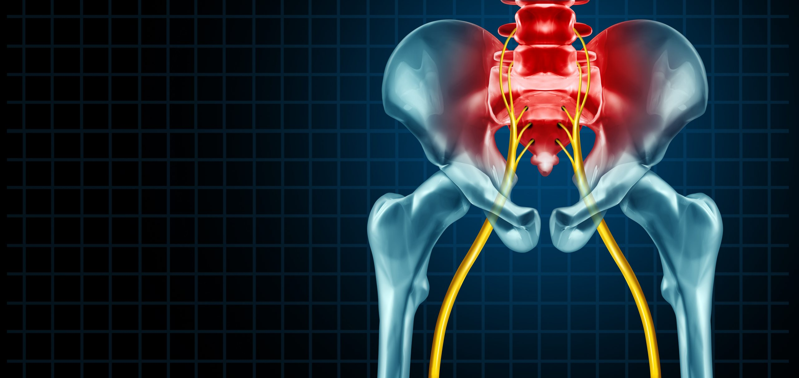 what is sciatica